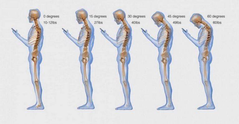 The Number One Way You Are Killing Your Posture